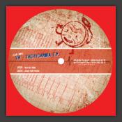 Tachycardia EP